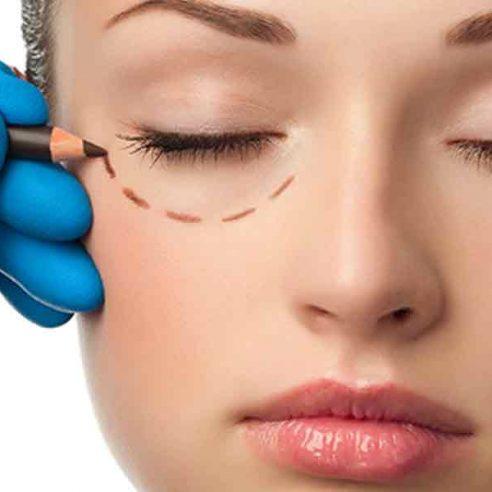 Chirurgia Estetica del viso - Blefaroplastica - Dott. Vincenzo Colabianchi