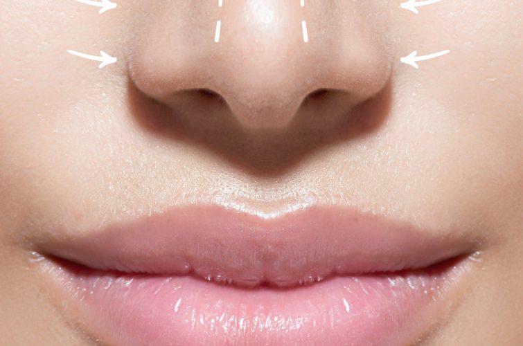Chirurgia estetica del viso - Rinoplastica - Dott. Vincenzo Colabianchi