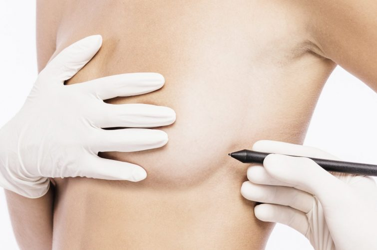 Chirurgia estetica del seno - Mastopessi - Dott. Vincenzo Colabianchi