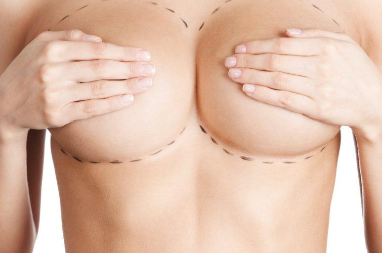 Chirurgia Estetica del seno - Mastoplastica additiva - Dott. Vincenzo Colabianchi