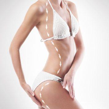 Chirurgia Estetica del corpo- Liposcultura - Dott. Vincenzo Colabianchi