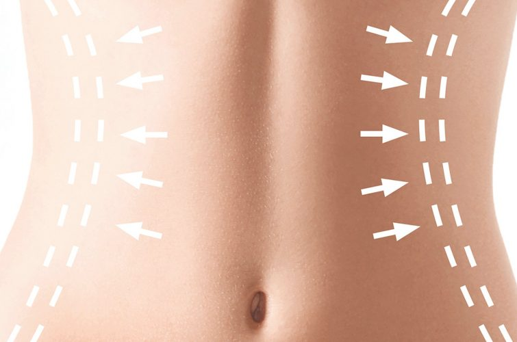 Chirurgia Estetica del corpo - Addominoplastica - Dott. Vincenzo Colabianchi