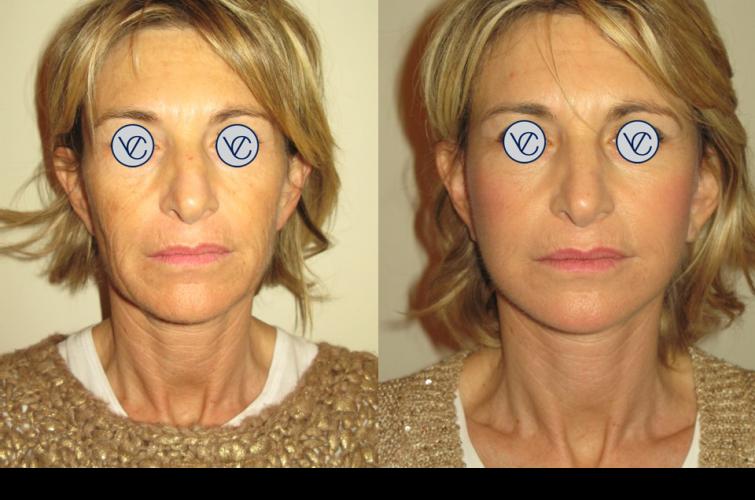 Dott.Vincenzo Colabianchi - lifting viso - prima e dopo