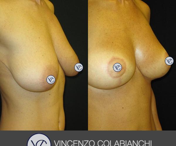 Dott.Vincenzo Colabianchi - mastoplastica additiva - prima e dopo