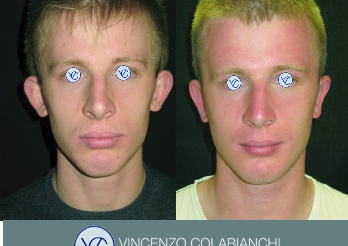 Dott.Vincenzo Colabianchi -otoplastica - prima e dopo