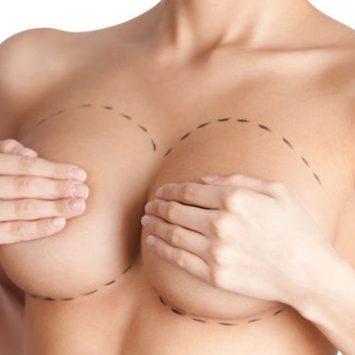 Chirurgia Estetica del seno - Mastoplastica riduttiva - Dott. Vincenzo Colabianchi