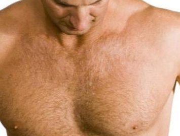 Chirurgia estetica del corpo - Ginecomastia - Dott. Vincenzo Colabianchi