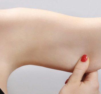 Chirurgia estetica del corpo - Lifting delle braccia - Dott. Vincenzo Colabianchi