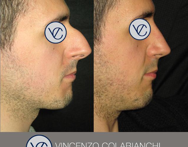 Dott.Vincenzo Colabianchi - rinoplastica - prima e dopo