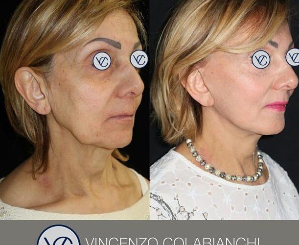 Dott.Vincenzo Colabianchi - lifting viso e collo - prima e dopo