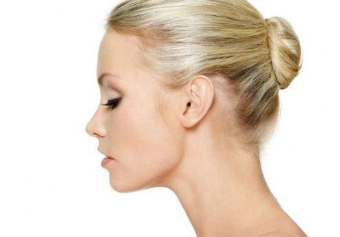 naso perfetto senza chirurgia