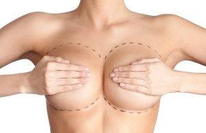 tipi di seno